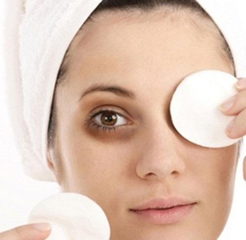 Sữa tươi ướp lạnh không những giúp giảm bọng mắt mà còn có tác dụng xóa quầng thầm mắt vô cùng hữu hiệu - Ảnh: Internet