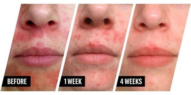 Đắp mặt với mật ong, liệu pháp hữu hiệu nhất cho cô nàng da dầu trong mùa thu hanh khô - Ảnh 4