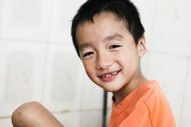 'Mẹ ơi sao con không mọc tay?', câu nói ngây ngô của bé trai 7 tuổi đẹp như thiên thần khiến ai cũng rơi nước mắt - Ảnh 2