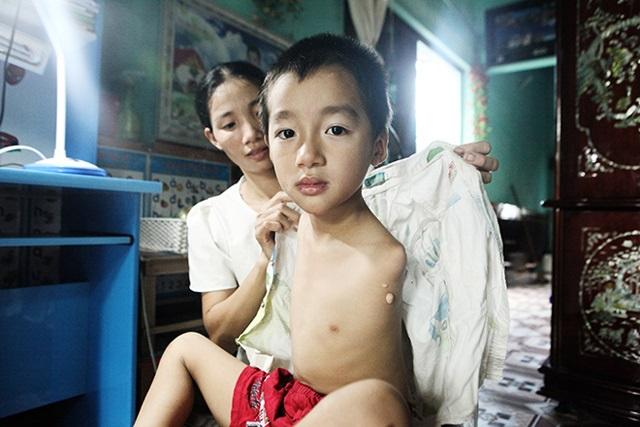 'Mẹ ơi sao con không mọc tay?', câu nói ngây ngô của bé trai 7 tuổi đẹp như thiên thần khiến ai cũng rơi nước mắt - Ảnh 6