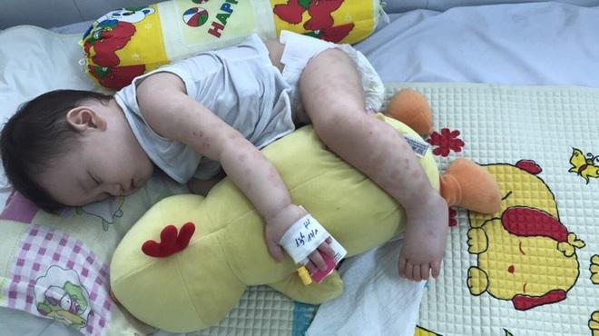 Mẹ tưởng con chỉ bị viêm phổi nhưng cuối cùng lại mắc bệnh lạ nguy hiểm - Ảnh 2