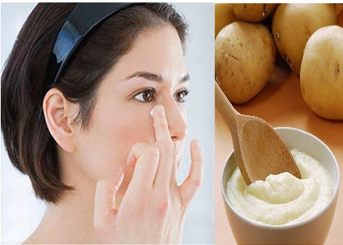 Mẹo trị mụn thịt dân gian với khoai tây xay nhuyễn.
