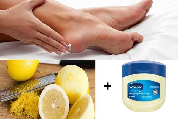 Mẹo trị nứt gót chân đơn giản và hiệu quả từ vaseline và chanh