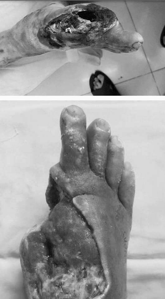 Rùng mình hình ảnh bàn chân mục ruỗng của bệnh nhân đái tháo đường - Ảnh 1