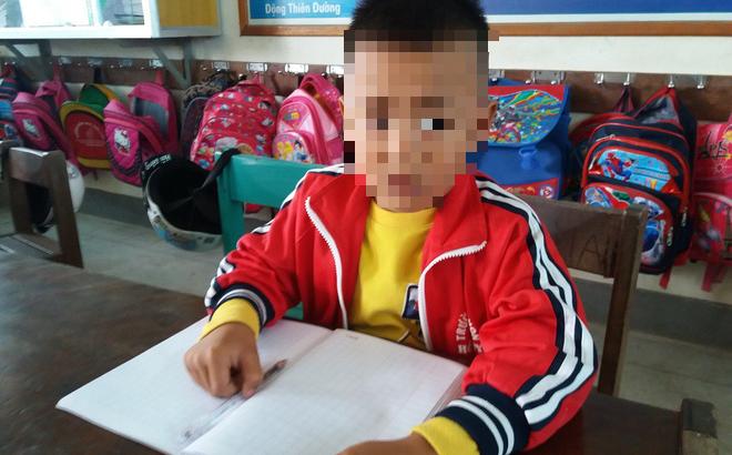 Học sinh lớp 1 bị cô giáo chủ nhiệm tát nhập viện chỉ vì làm nhầm đề thi - Ảnh 1