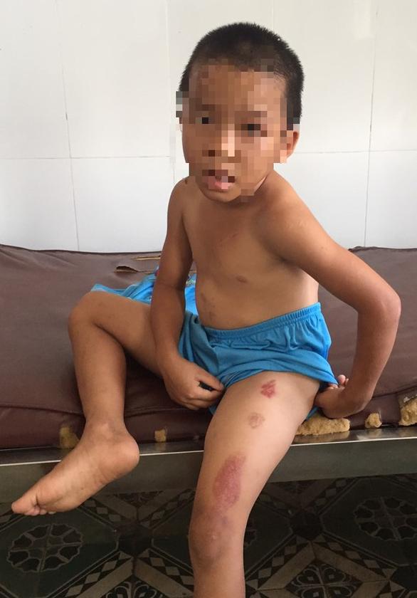 Bé trai 6 tuổi bị cha dượng bạo hành dã man - Ảnh 1