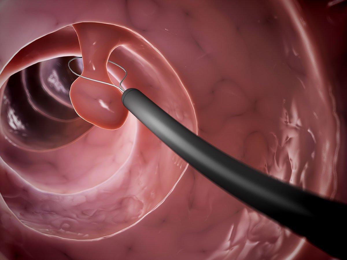 Ung thư đại trực tràng không 'im lặng', bệnh chỉ phát triển khi bạn đã bỏ quên 2 loại polyp này - Ảnh 1