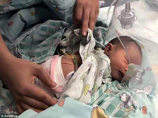 Con 2 tháng tuổi liên tục chảy dịch lạ từ ngày rụng rốn, đi khám mới biết là do căn bệnh cứ 500 trẻ sơ sinh có 1 trẻ mắc phải - Ảnh 1