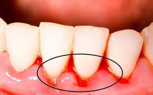 Đây là 3 dấu hiệu ở miệng giúp cảnh báo sớm ung thư gan đang âm thầm tìm đến - Ảnh 1