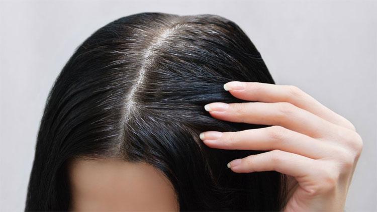 Đừng nghĩ tóc bạc sớm là do máu xấu, có thể bạn đang mắc 1 trong 5 loại bệnh này - Ảnh 1