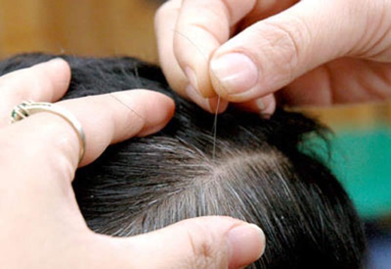Đừng nghĩ tóc bạc sớm là do máu xấu, có thể bạn đang mắc 1 trong 5 loại bệnh này - Ảnh 2