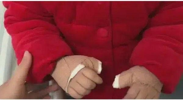 Dùng điện thoại làm 'vật dụ dỗ trẻ', bà hối hận khi biết cháu phải nhập viện phẫu thuật cả 2 bàn tay - Ảnh 2
