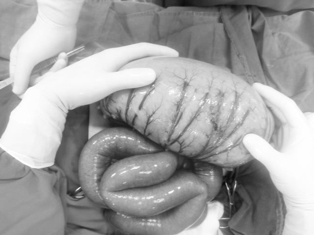 Bé trai 8 tuổi suýt vỡ ruột vì ba mẹ chủ quan với chứng bệnh táo bón thường ngày của con - Ảnh 1