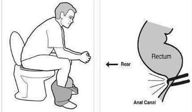 Ung thư ruột sẽ tìm đến nếu bạn vẫn cứ giữ mãi thói quen đi vệ sinh này, tưởng không hại lại hại không tưởng - Ảnh 1