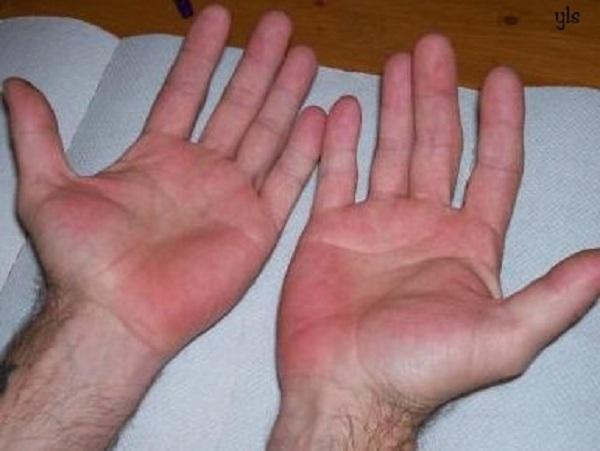 3 tín hiệu trên tay cho biết gan đã bị 'hỏng', thậm chí tế bào ung thư đã xâm lấn cần kiểm tra ngay - Ảnh 1
