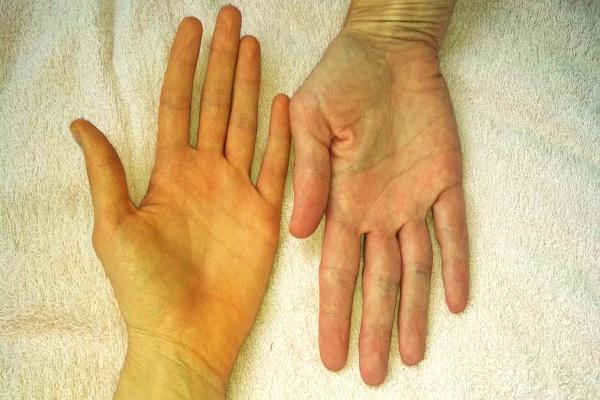 3 tín hiệu trên tay cho biết gan đã bị 'hỏng', thậm chí tế bào ung thư đã xâm lấn cần kiểm tra ngay - Ảnh 2