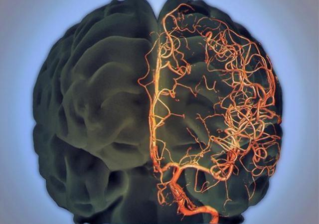 Người phụ nữ 45 tuổi bị nhồi máu não do sở thích ăn uống nhiều người mắc phải, bỏ ngay kẻo muộn - Ảnh 2