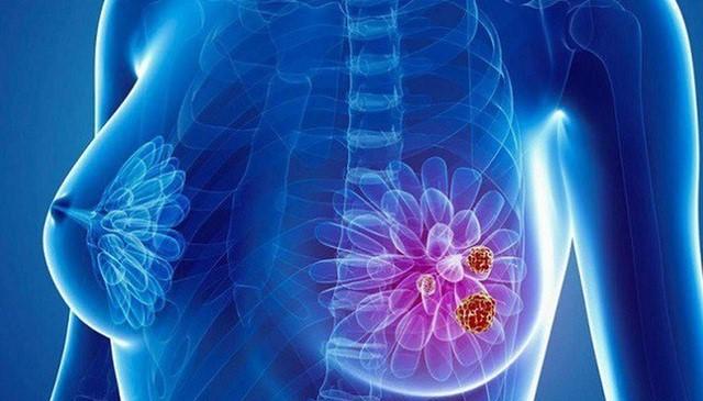 Cứ 8 người phụ nữ là có 1 người bị ung thư vú, 90% bạn đã bị ung thư 'ghé thăm' khi vú có những điểm này - Ảnh 1