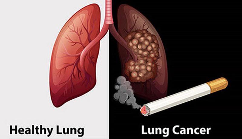 SOS: Thêm 26.000 người Việt mắc ung thư phổi năm 2020, 90% đều hút thuốc lá - Ảnh 1