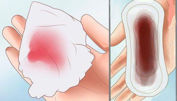 3 bộ phận trên cơ thể phụ nữ càng sẫm màu, báo hiệu tử cung đã tích tụ rất nhiều độc tố nguy hiểm - Ảnh 1