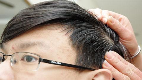 Món ăn - bài thuốc chữa chứng tóc bạc sớm - Ảnh 1