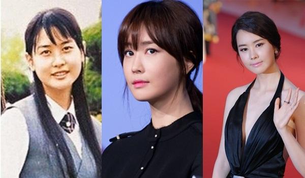 7 mỹ nhân xứ Hàn lãnh hậu quả vì lạm dụng botox