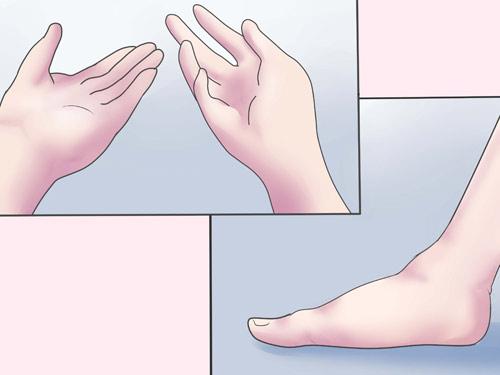 Cảnh giác căn bệnh có thể cướp mạng sống của sản phụ ngay khi chuyển dạ sinh con - Ảnh 3