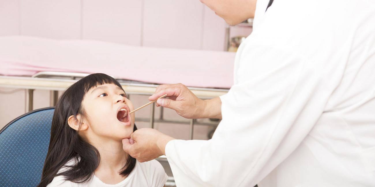 Trẻ bị viêm họng cấp có nên uống kháng sinh? - Ảnh 1