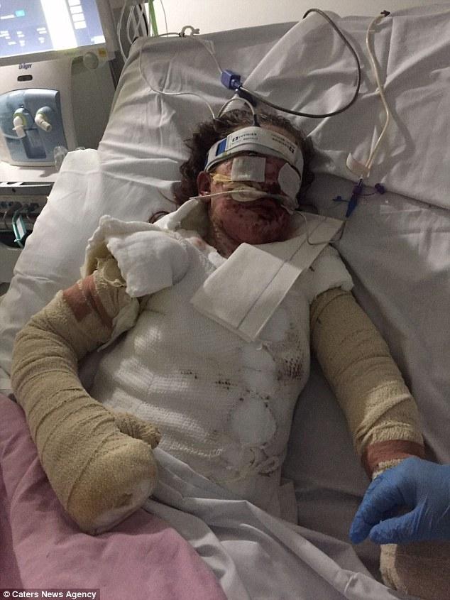 Bé gái bỏng 65% cơ thể và mất trí nhớ sau khi uống thuốc giảm đau - Ảnh 1