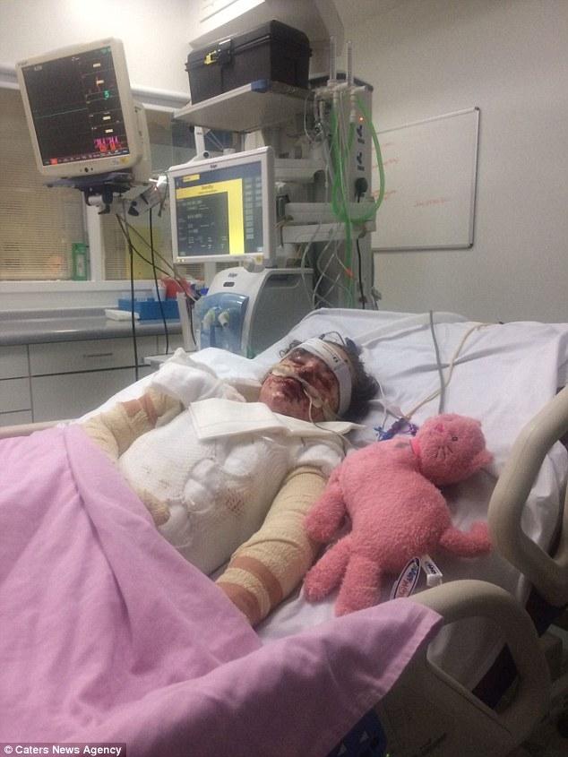 Bé gái bỏng 65% cơ thể và mất trí nhớ sau khi uống thuốc giảm đau - Ảnh 2