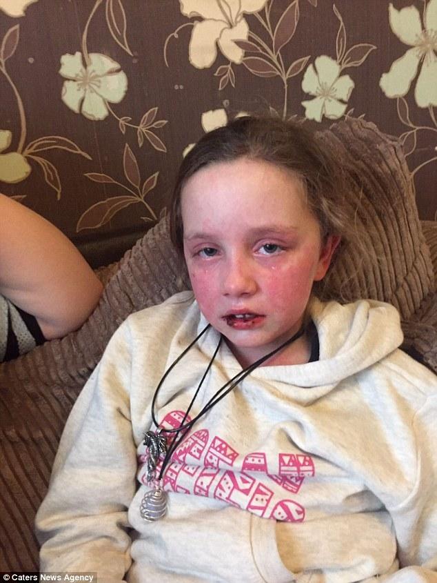 Bé gái bỏng 65% cơ thể và mất trí nhớ sau khi uống thuốc giảm đau - Ảnh 3