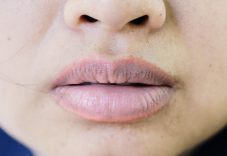 10 dấu hiệu cơ thể ai cũng nghĩ hoàn toàn bình thường nhưng cảnh báo bệnh nan y - Ảnh 4