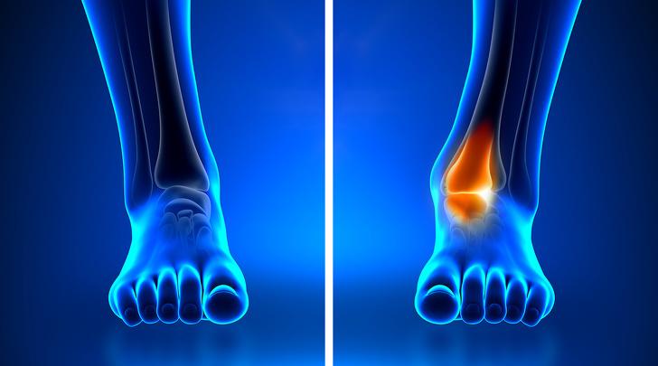 10 dấu hiệu cơ thể ai cũng nghĩ hoàn toàn bình thường nhưng cảnh báo bệnh nan y - Ảnh 8