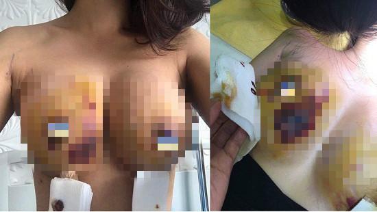 Chị L. cho biết BS đã yêu cầu chị phải mổ tháo túi ngực nhưng vẫn chưa thể làm do vụ việc chưa có kết luận cuối cùng
