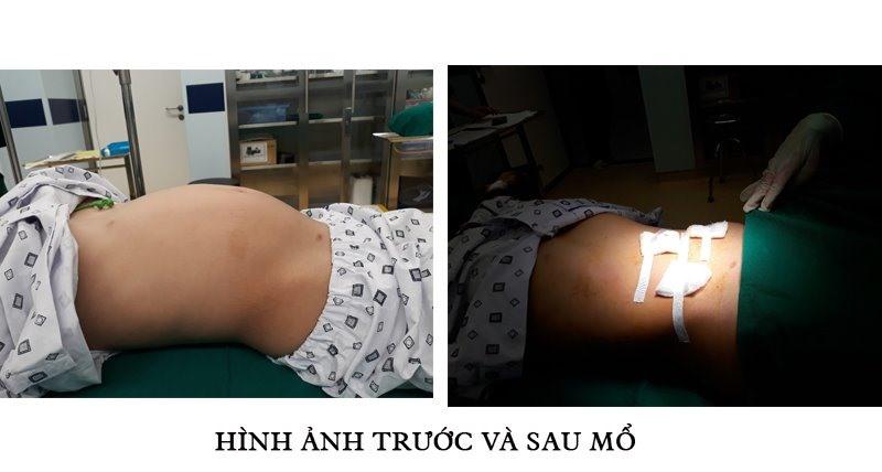 Bé gái 10 tuổi mắc u nang buồng trứng, bố mẹ tưởng con béo đột ngột - Ảnh 2