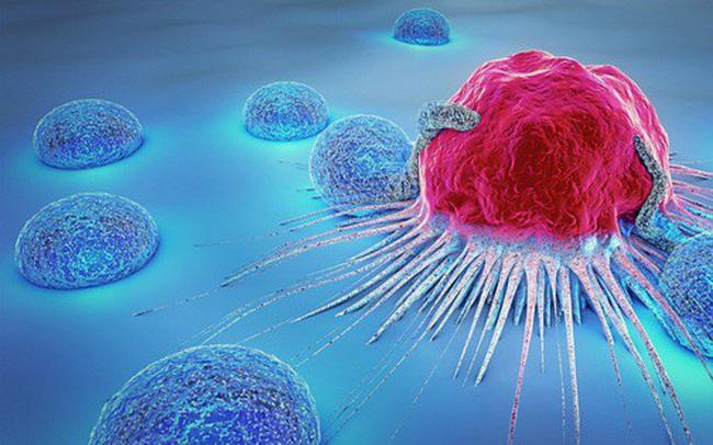 Ung thư là sự phát triển không có kiểm soát của các tế bào trong cơ thể