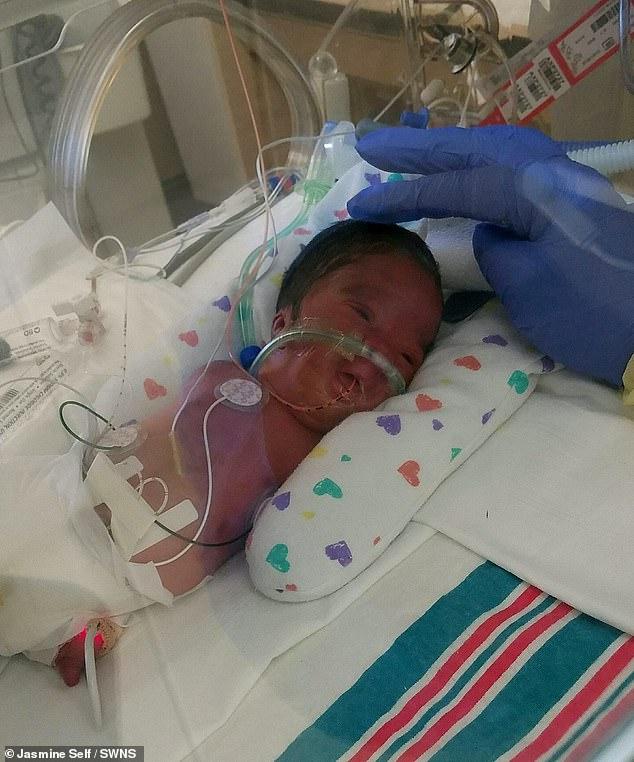 Bác sĩ khuyên mẹ chấm dứt thai kỳ, bé trai sơ sinh thiếu tứ chi vẫn chào đời khỏe mạnh - Ảnh 2