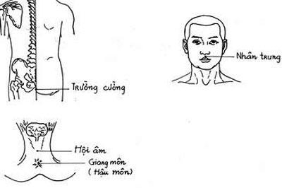 Dùng vật sắc nhọn gần đó để đâm vào huyệt trường cường phía dưới hậu môn để giảm huyết áp