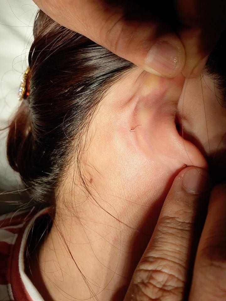 Hoại tử mũi, nát ngực vì làm đẹp đón Tết - Ảnh 3