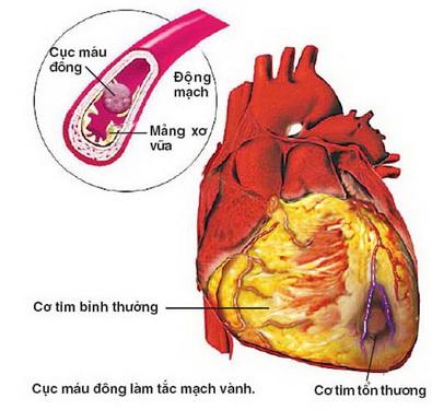 Bệnh xơ vữa động mạch là một trong những nguyên nhân gây ra các vấn đề nghiêm trọng như nhồi máu cơ tim, đột quỵ, thậm chí tử vong