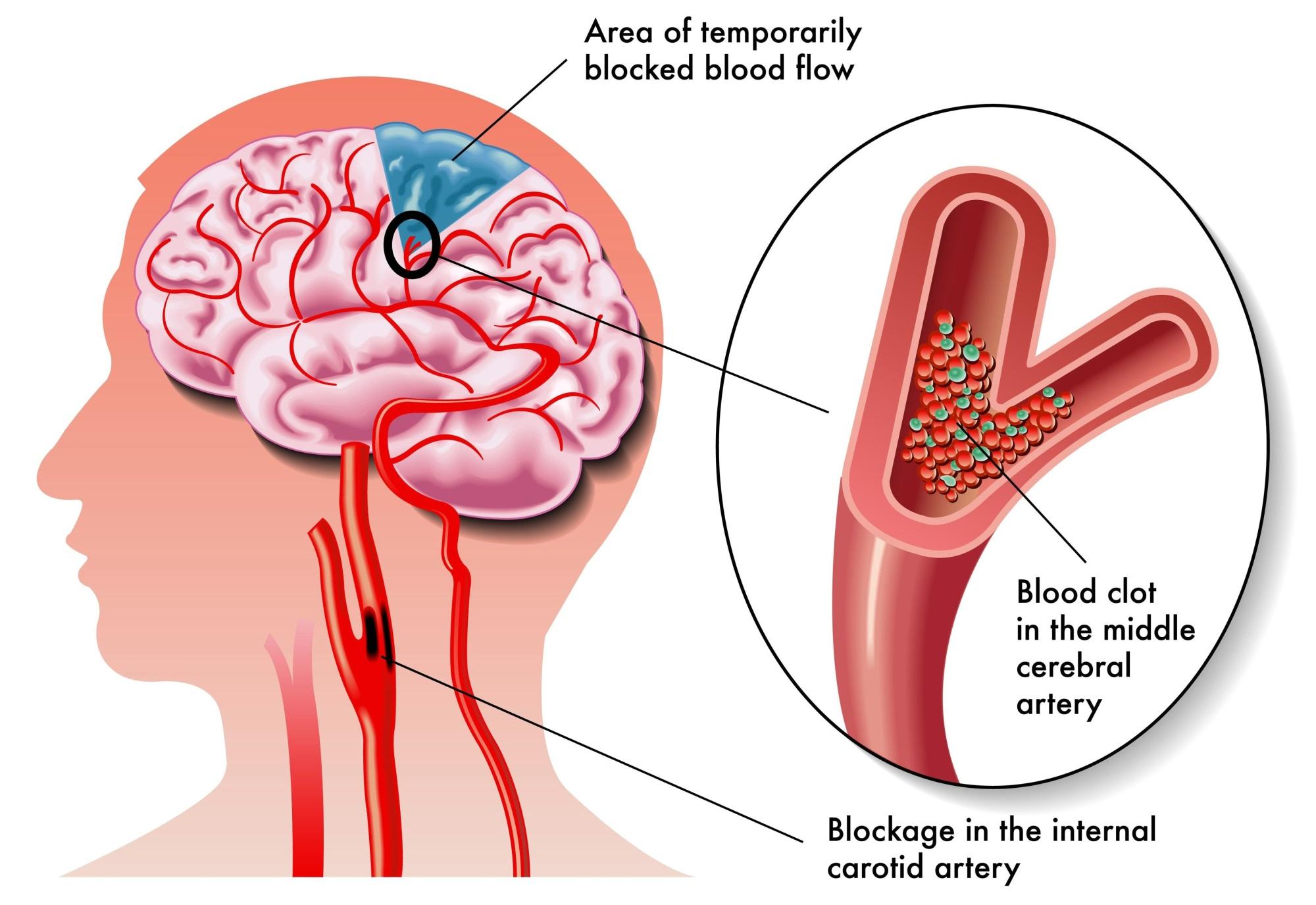 Trong một vài trường hợp, tình trạng xơ cứng ở động mạch sẽ làm hẹp lòng động mạch não dẫn đến rối loạn tuần hoàn não