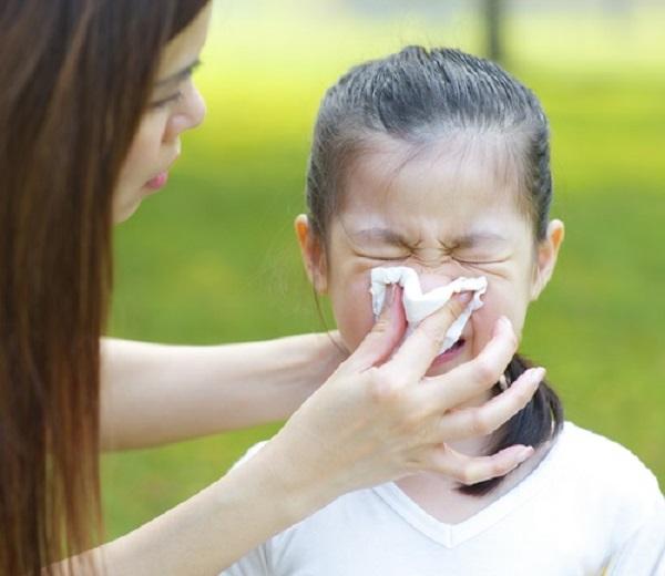 Cần làm gì khi trẻ bất ngờ bị chảy máu cam? - Ảnh 2