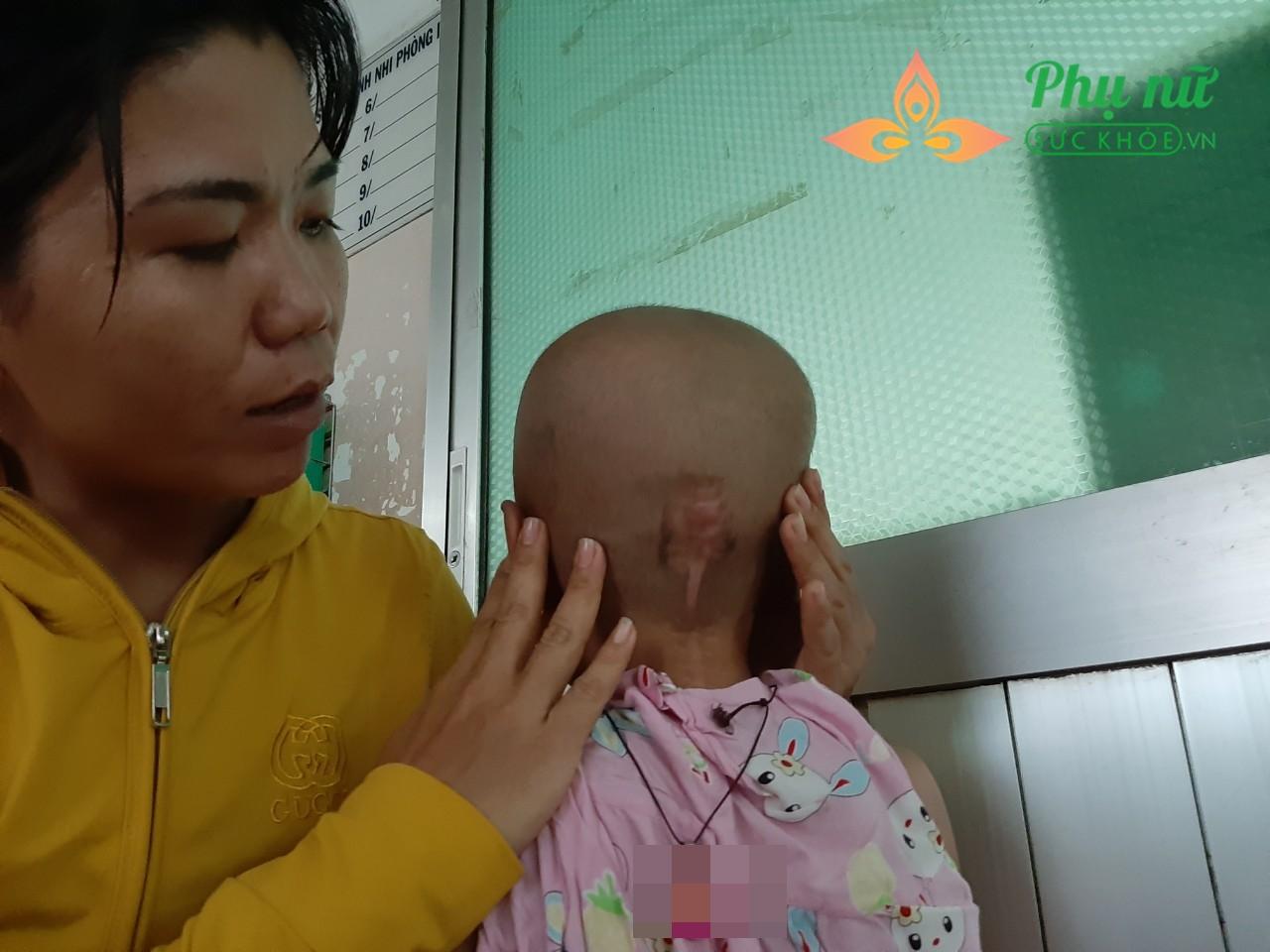 Mới 6 tuổi, bé Vàng đã trải qua 2 cuộc phẫu thuật não bộ, để lại những vết sẹo rất lớn