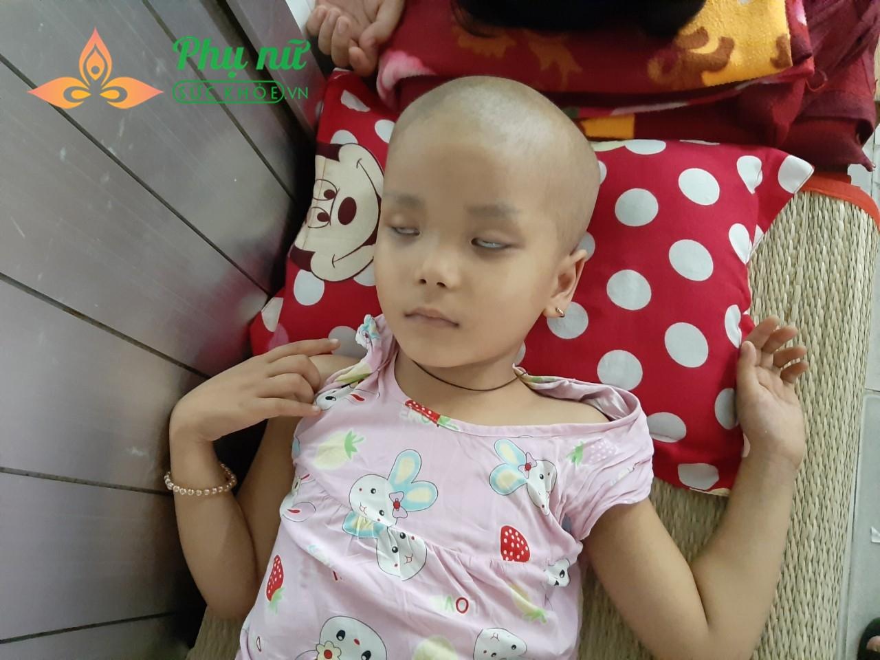 Sau khi vô thuốc hóa trị, bé Vàng mệt mỏi và ngủ không thể khép mi mắt