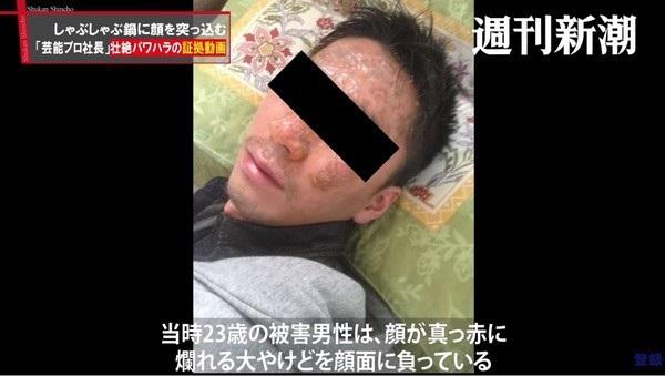 Người này bị bỏng trên khuôn mặt sau