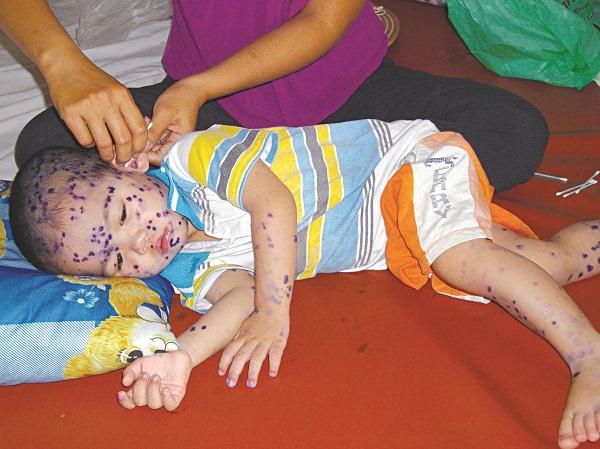 Bệnh thủy đậu ở trẻ em nên kiêng gì: Bệnh có lây không? - Ảnh 3