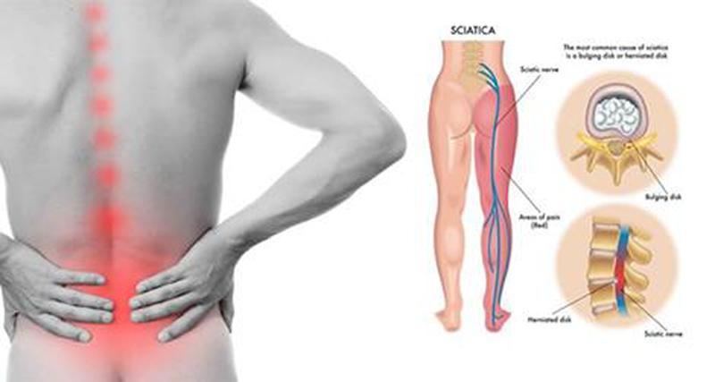 Cơn đau ở hậu môn đôi khi có nguyên nhân từ đau thần kinh tọa