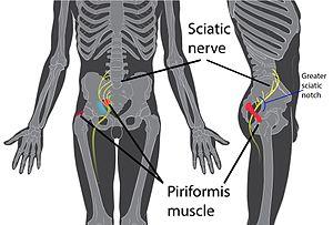 Khi mắc hội chứng piriformis, bạn sẽ bị đau phần hông, mông và hậu môn