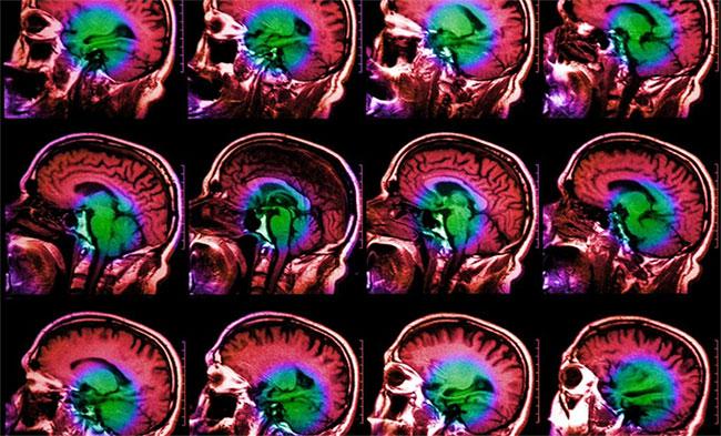 Nỗi buồn của bạn trông như thế nào trong não - Ảnh 1