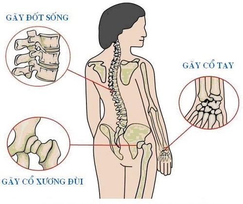 Từ sau 30 tuổi, xương bắt đầu có dấu hiệu thoái hóa